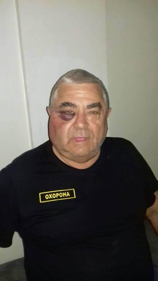 Пенсионер, избитый советником Кернеса